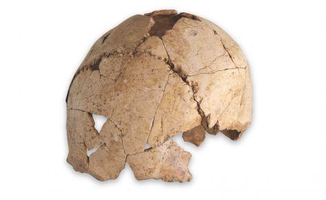 Calota cranial d'humà anatòmicament modern